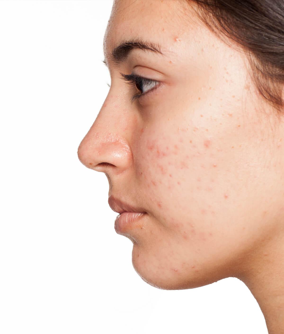 Acne - Cairns Dermatology