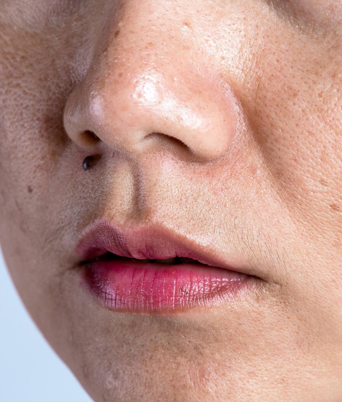 Melasma - Cairns Dermatology